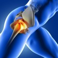 pain-hip-joint_1048-2342